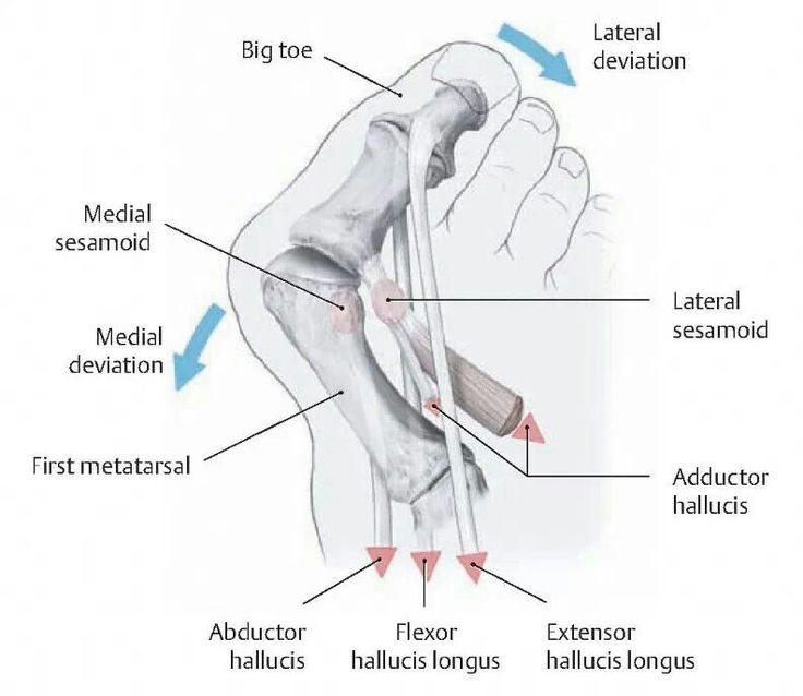 complications of a bunion