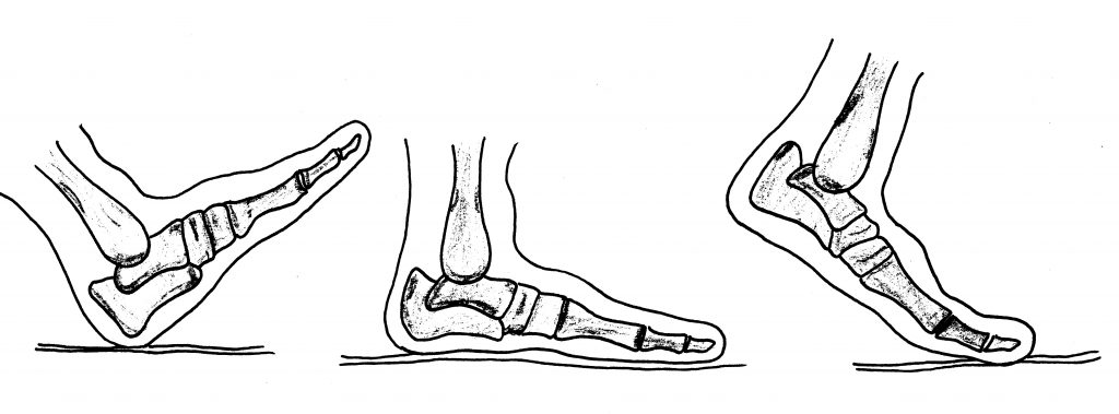 Flat foot toe function