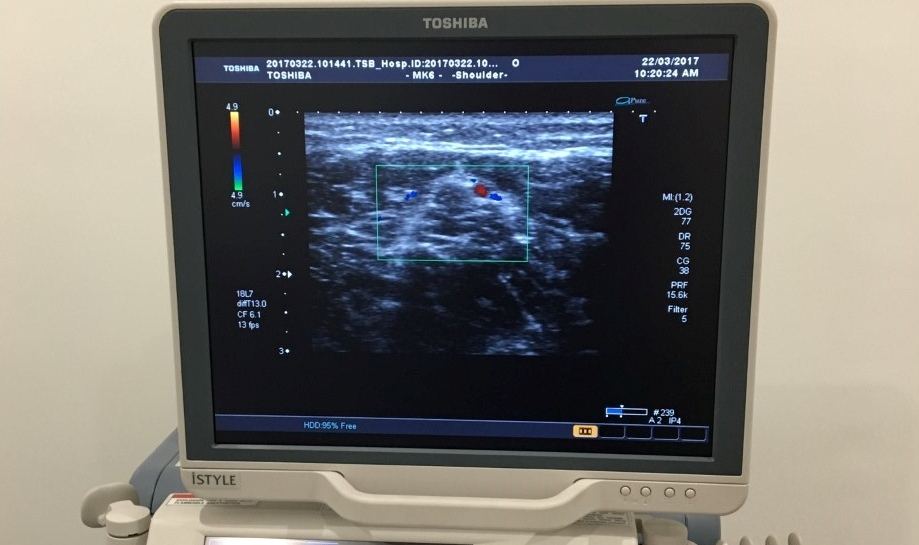 Ultrasound imaging foot and ankle