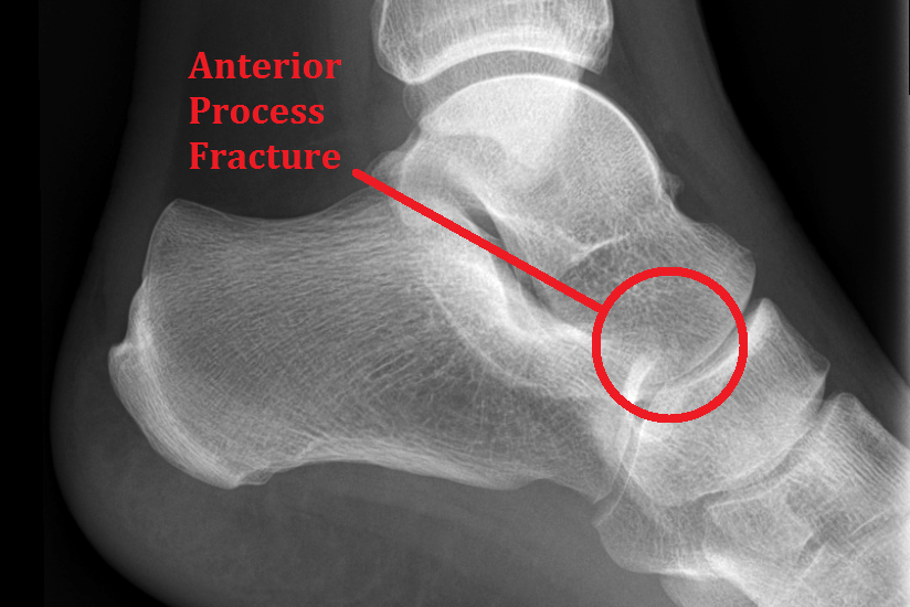 Xray anterior process of the calcaneus fracture