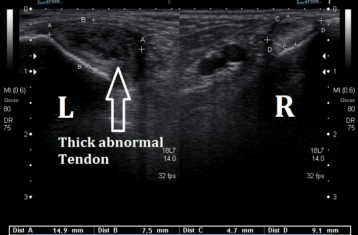 Ultrasound of tibialis posterior tendon