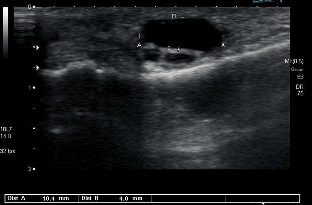 Ultrasound Image Adventitial Bursa