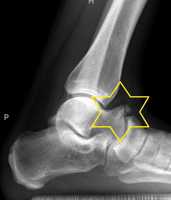 Osseous Anterior Ankle Impingement