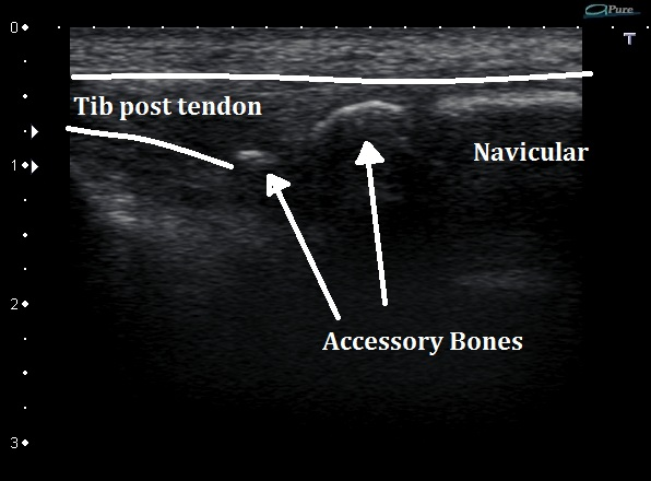 Ultrasound of Accessory Navicular Bone