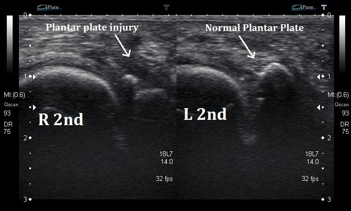 Plantar plate tear ultrasound