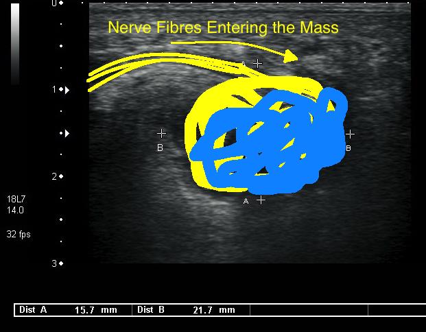 Neuroma Ultrasound