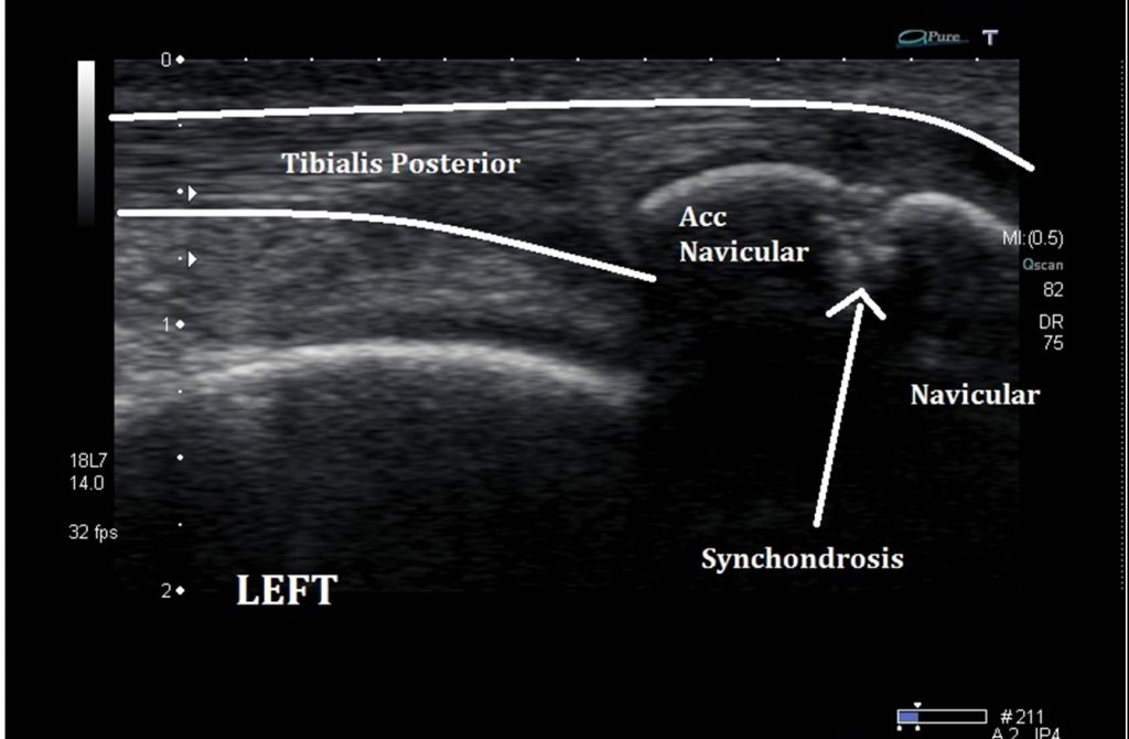 Ultrasound Imaging Of The Accessory Navicular Bone Ankle Foot And Orthotic Centre 11.15% type i (19 cases), 4.11% type ii. accessory navicular bone ankle foot