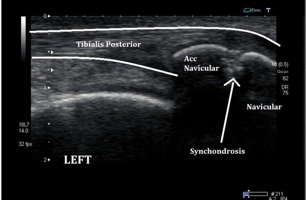 Ultrasound Imaging Of The Accessory Navicular Bone Ankle Foot And Orthotic Centre Prof nabile ebraheim, university of toledo, ohio, usa. accessory navicular bone ankle foot