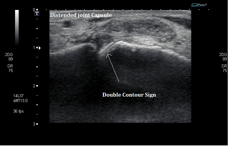 Ultrasound of Gout
