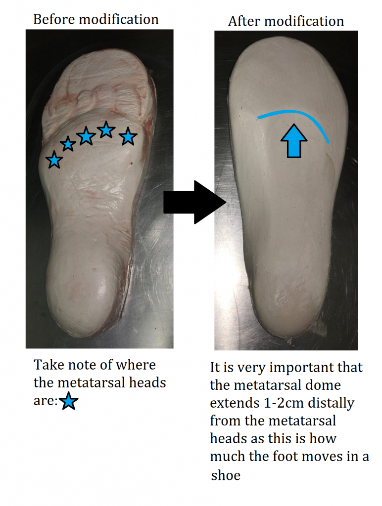 Neuroma Orthotic