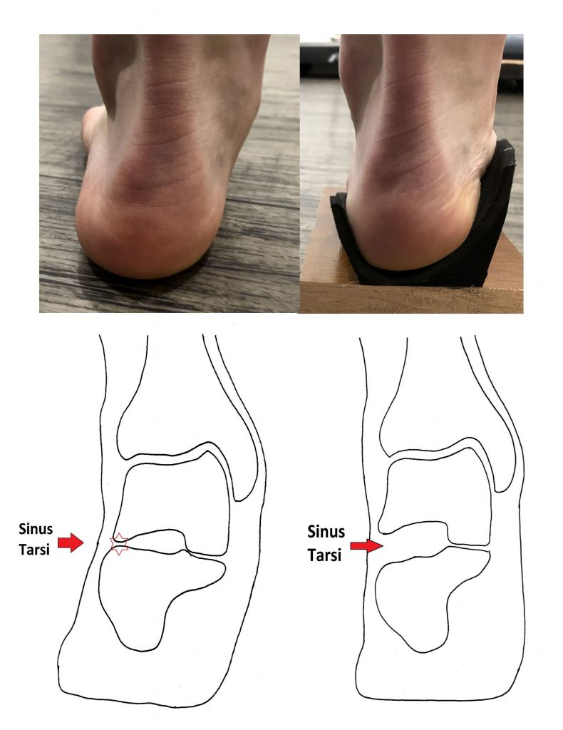 Deep Heel Cup Orthotic