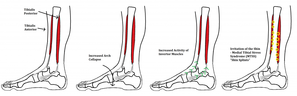 Shin Splints Medial Tibial Stress Syndrome Ankle Foot And Orthotic Centre