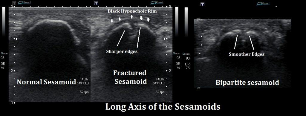 Ultrasound Fractured Sesamoid