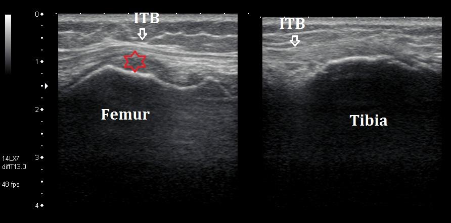 Iliotibial band friction ultrasound