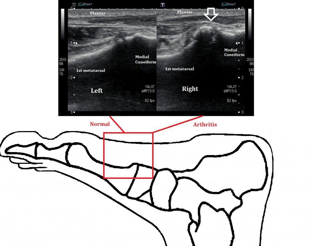 Midfoot Arthritis Ultrasound